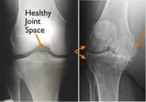 Osteoarthritis – What Can You Do About It?