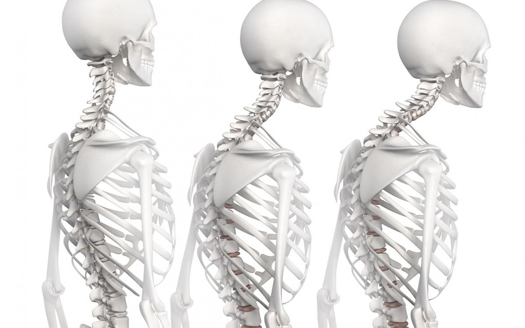 Osteoporosis Treatments – Get a Bone Density Scan