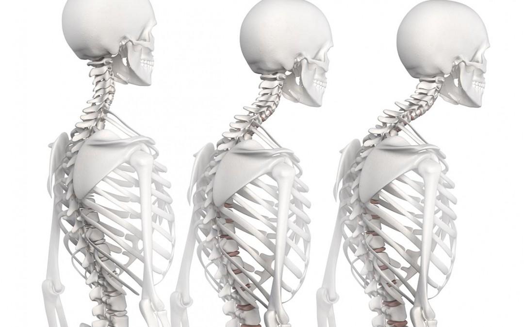 Osteoporosis Treatments – Get a Bone Density Scan