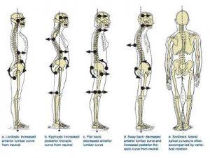 Posture Problems